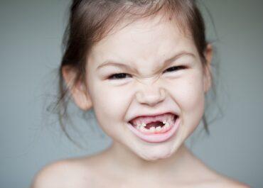Zęby mleczne – wystarczy dbać czy konieczne jest leczenie?